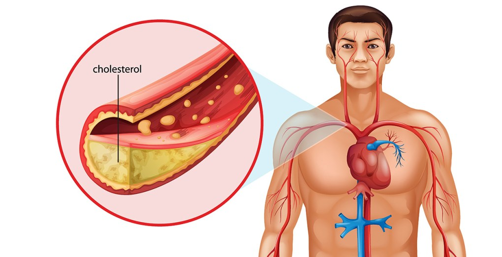Home Remedies For High Cholesterol Level