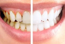 Gum disease is frequently known as ''Periodontal Disease''. Gum disease is caused by factors such as bacterial growth in the mouth,