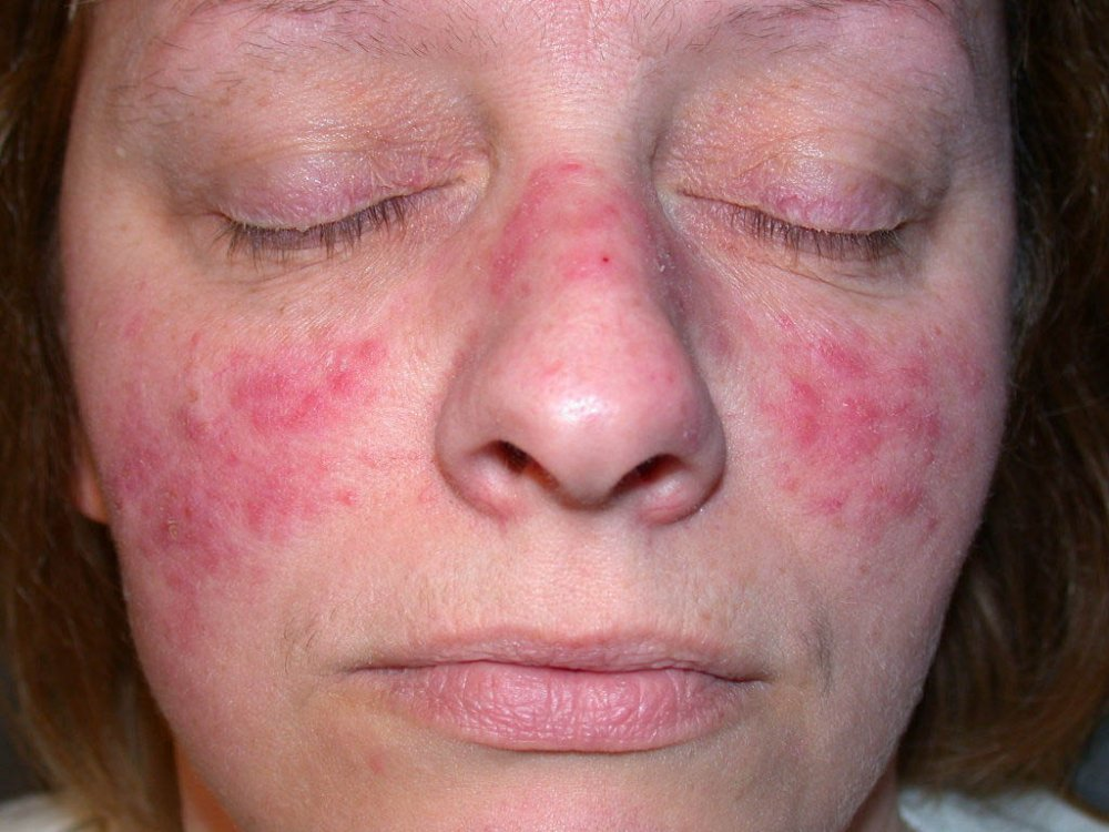 Image result for rosacea causes, symptoms & treatments