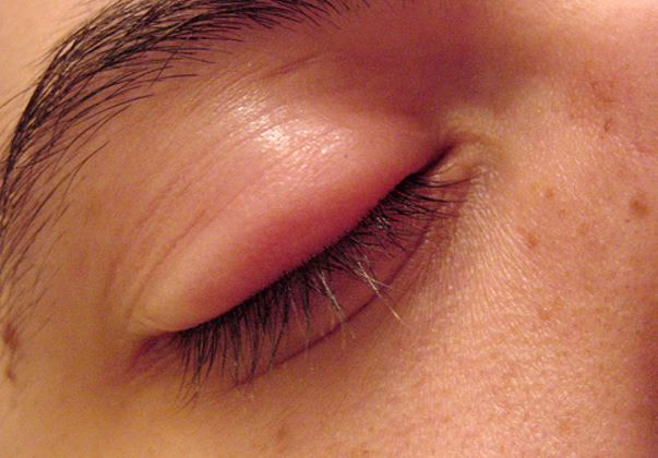 swollen eyelid treatment fast