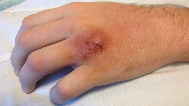 7 Home Remedies For Staph Infection