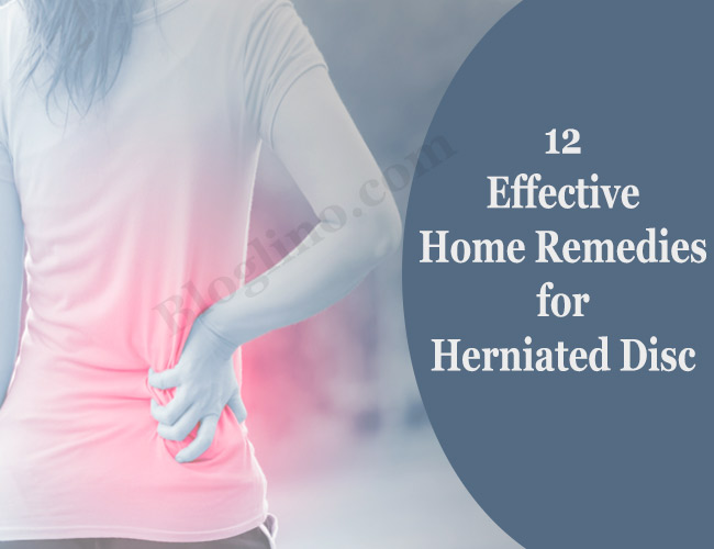 12 Home Remedies for Herniated Disc or Slipped Disc