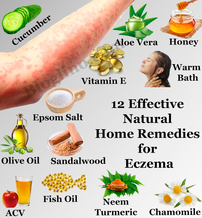 12 Effective Natural Home Remedies for Eczema.