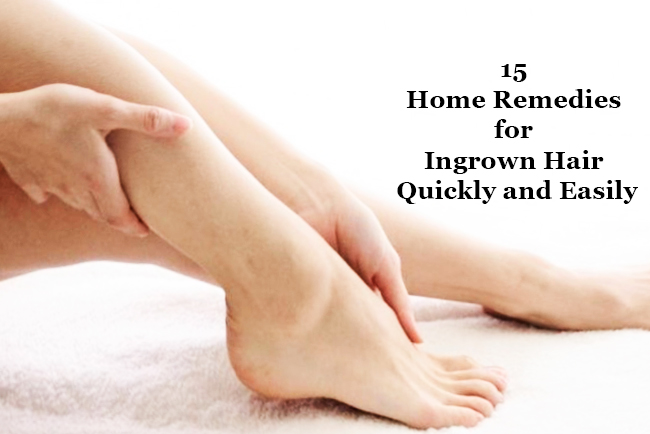 15-Home-Remedies-for-Ingrown-Hair-Quickly-and-Easily