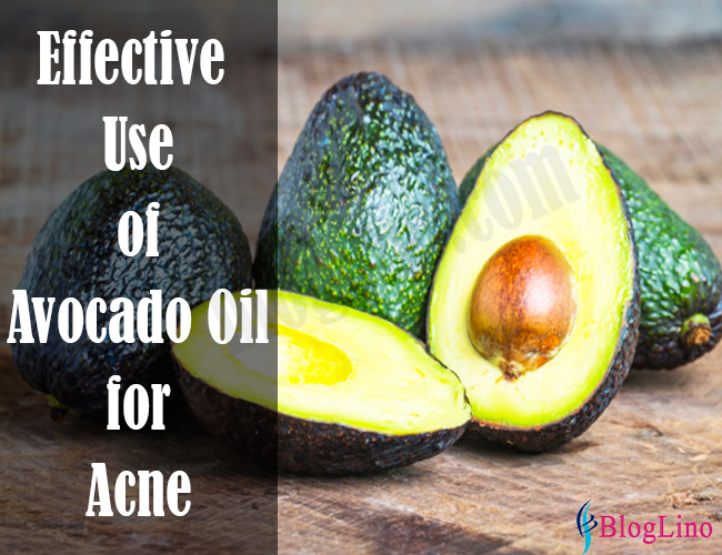 effective-use-of-avocado-oil-for-acne
