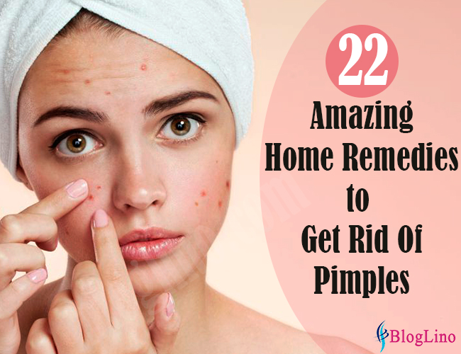 22 Amazing Natural Home Remedies to Get Rid of Pimples and Acne