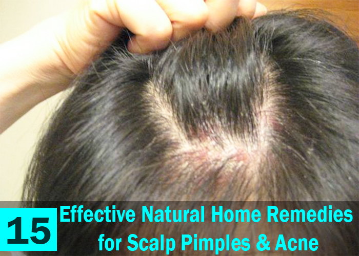 15-Effective-Natural-Home-Remedies-for-Scalp-Pimples-&-Acne