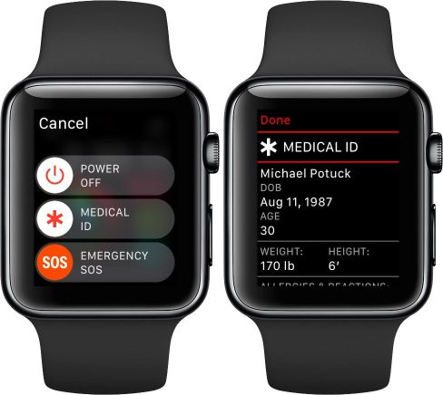 Come accedere alla Cartella clinica/Medical ID su Apple Watch