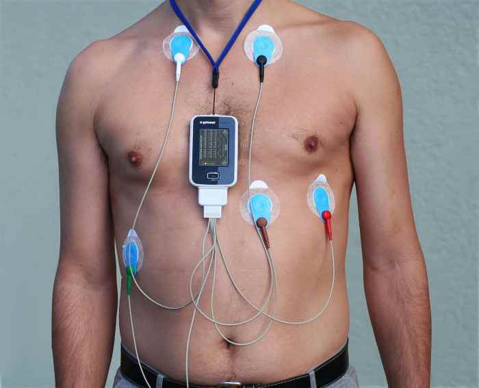 ECG dinamico secondo Holter