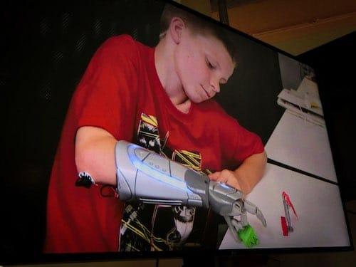 Protesi bioniche Mani Bioniche