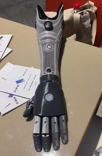 Protesi Bionica Mano Bionica di Open Bionics
