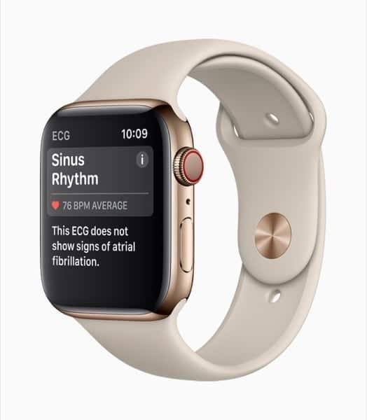 Apple Watch Series 4 ECG Rivela Condizione di Normalità senza Segni di Fibrillazione Atriale