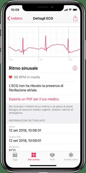 Dettagli ECG Apple Watch su iPhone Con Ritmo Sinusale Normale