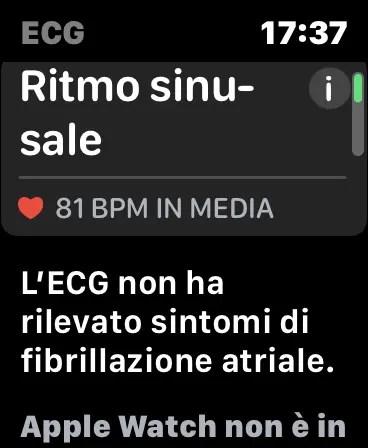 Risultato di ECG su Apple Watch