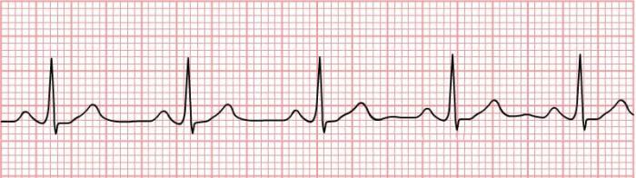 Ritmo sinusale normale in un ECG