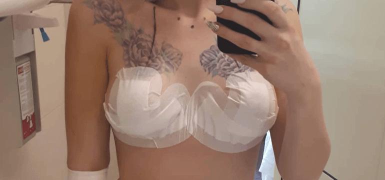 Коррекция тубулярной груди 10