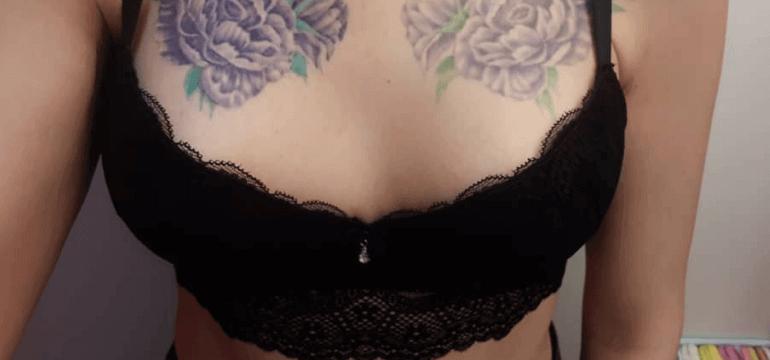 Пластика тубулярной груди 12