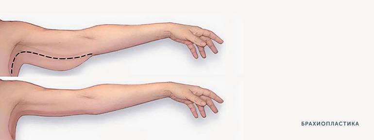 Брахиопластика 2