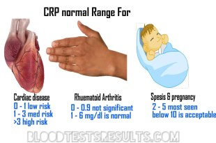 CRP Hs CRP normal chart