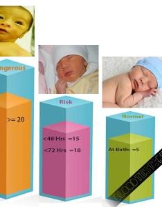 Newborn bilirubin levels chart also updated jaundice in newborns rh bloodtestsresults