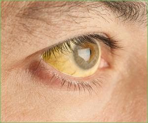 eyes Jaundice