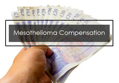 Mesothelioma Compensation UK -How to Get Free Legal Help for Mesothelioma Attorney in UK