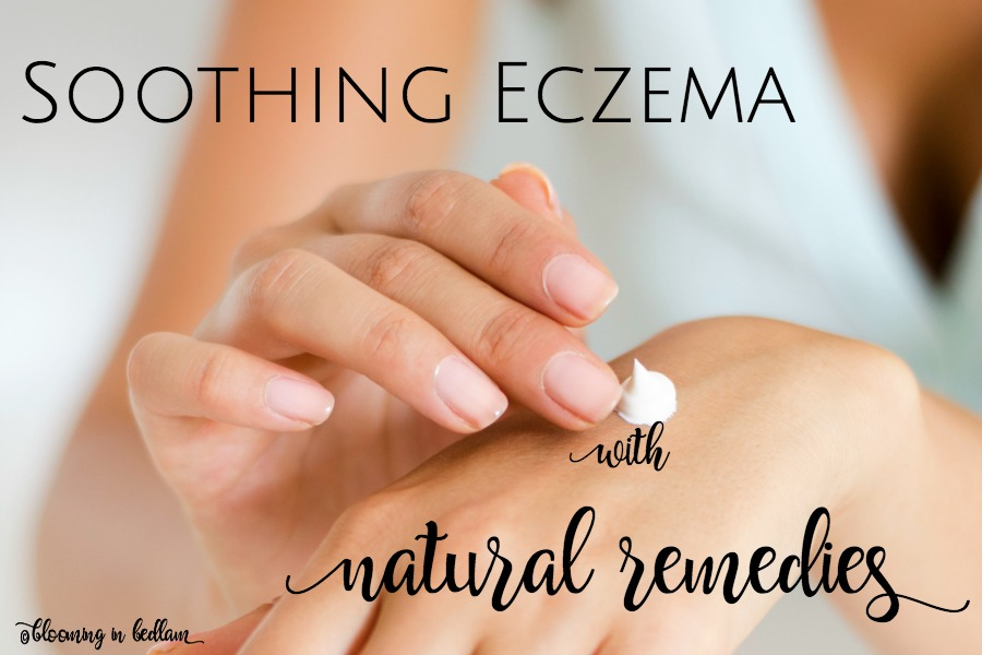 Soothing Eczema with Natural Remedies