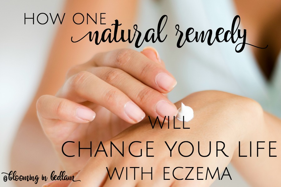 How one natural remedy will CHANGE YOUR LIFE WITH ECZEMA!  Forget those prescription steroids that lead to discoloration and skin sensitivity. Soothe your eczema with natural remedies and change your skin. #eczema #naturalremedies #eczemahelp #nontoxicskincare #naturalskincare #greenbeauty #diyskincare #greenbeautyproducts #dryskin #oilyskin