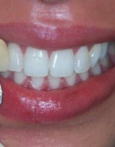 tooth shade also who wants  blue court dental centre harrow rh bluecourtdental
