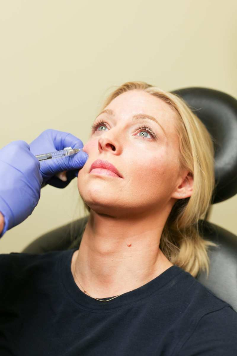 What do fillers do and what type of fillers should you get.