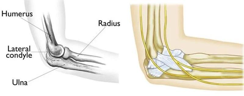 Elbow Fracture in Children | Pediatrics - Orthopedic ...