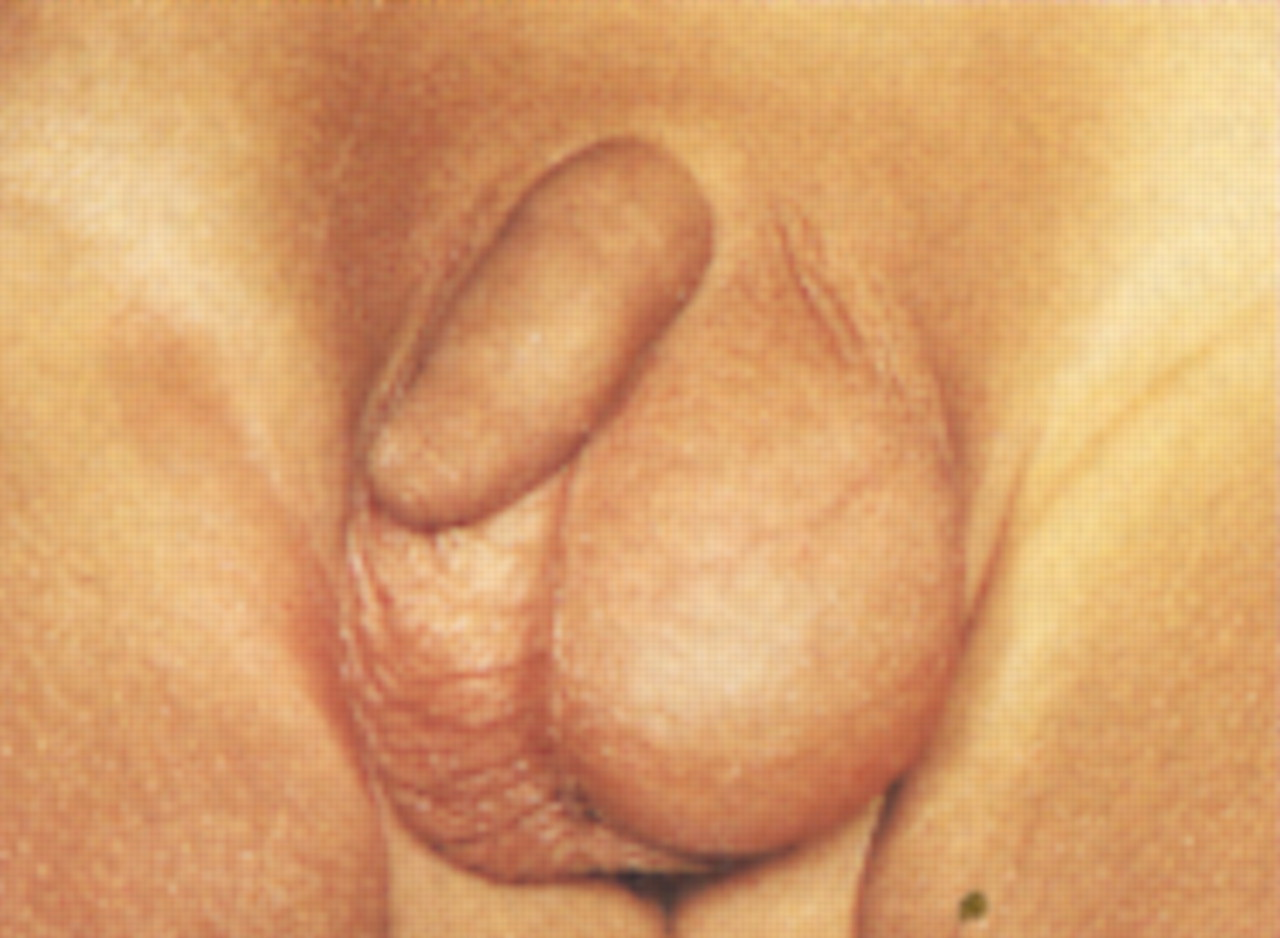 ABC of General Paediatric Surgery INGUINAL HERNIA HYDROCELE AND THE UNDESCENDED TESTIS  The BMJ