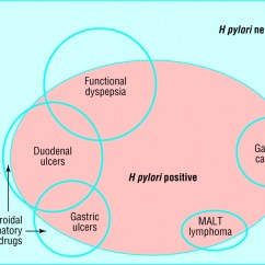Pathophysiology Of Peptic Ulcer Disease Diagram Toyota Land Cruiser Prado 120 Wiring Duodenal And Gastric