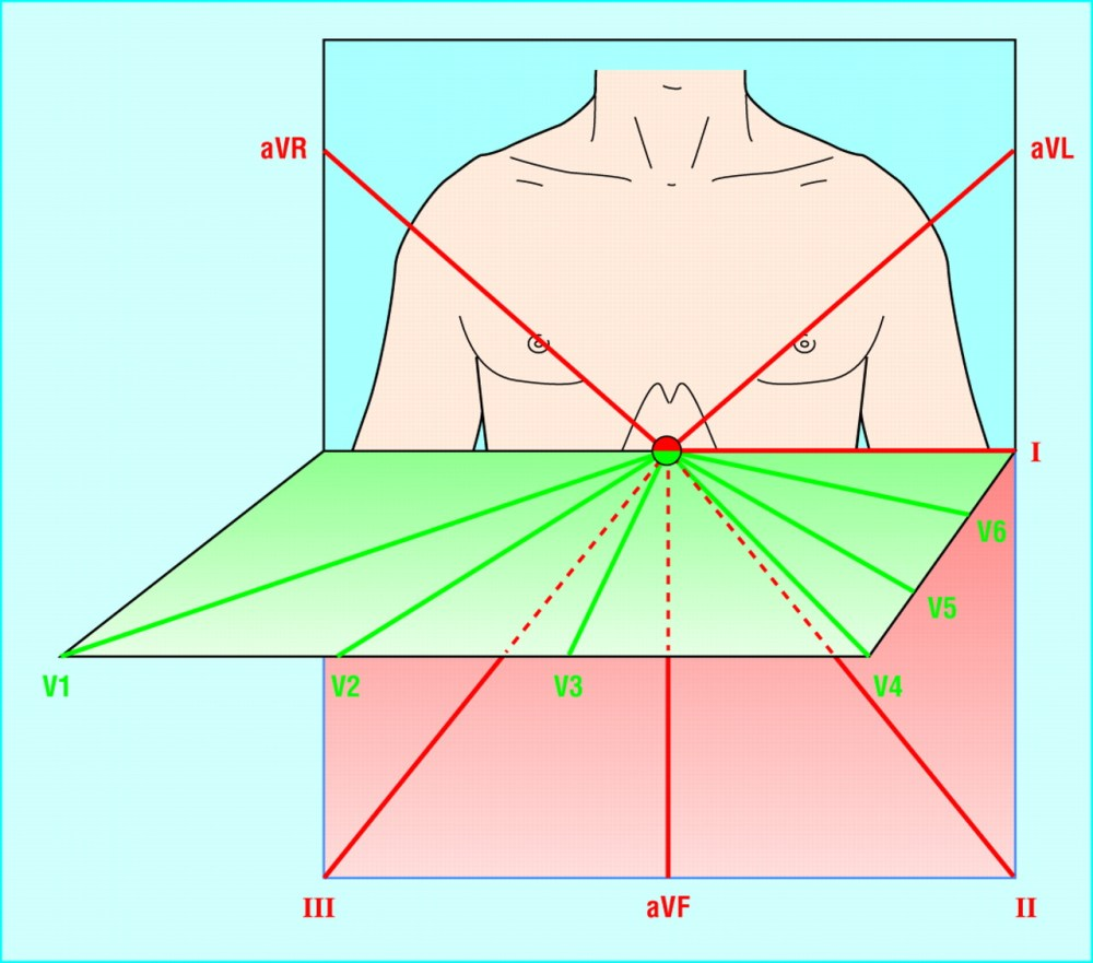 medium resolution of vertical and horizontal perspective of the leads the limb leads view the heart in the vertical plane and the chest leads in the horizontal plane