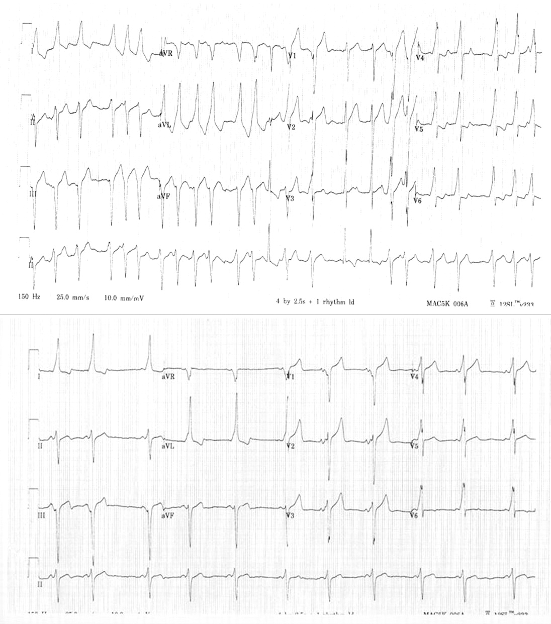 Ecg Leads To A Quick Diagnosis