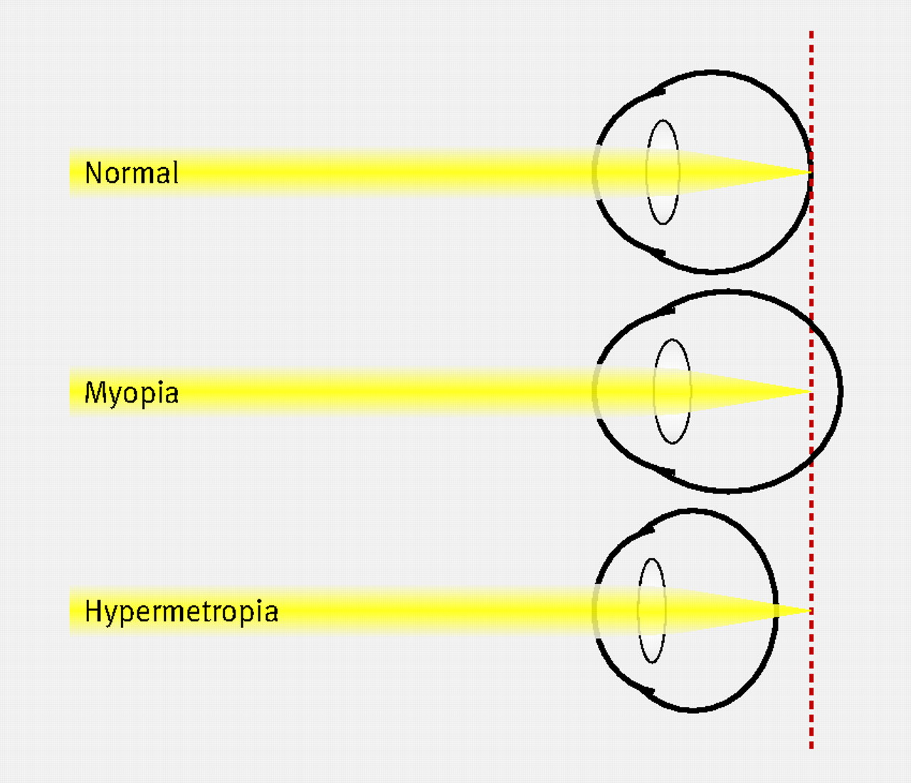 long and short sighted diagram car equalizer wiring laser refractive eye surgery the bmj