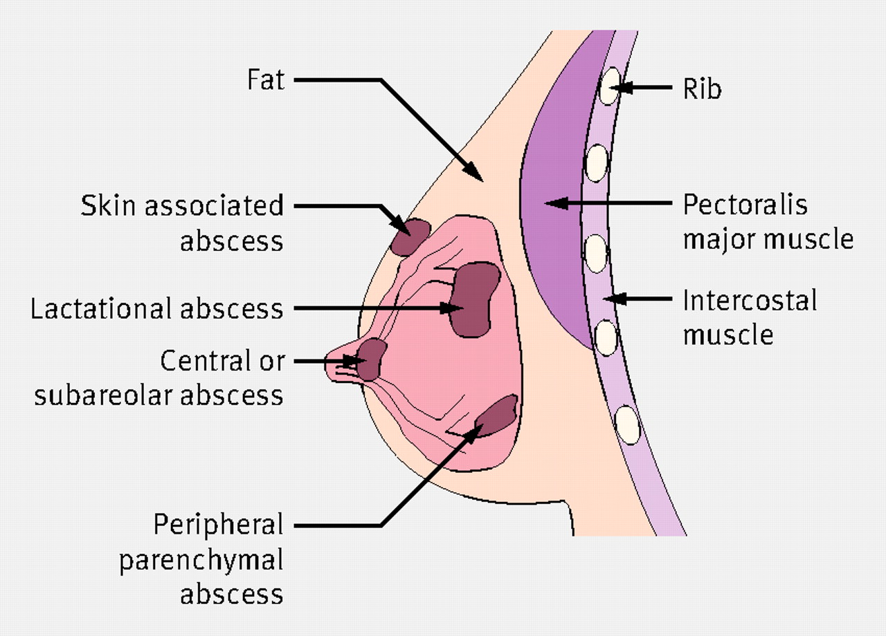 hight resolution of diagram of absces
