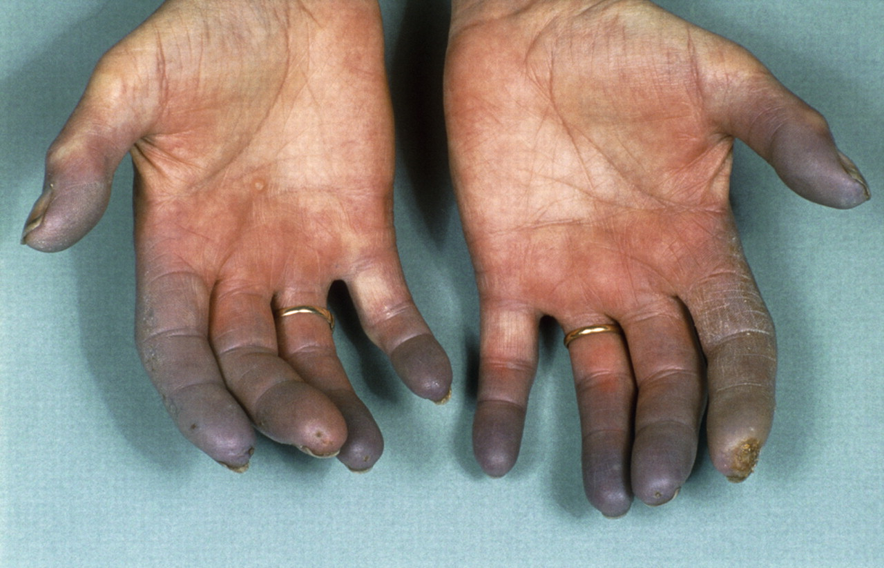 Diagnosis and management of Raynaud's phenomenon   The BMJ
