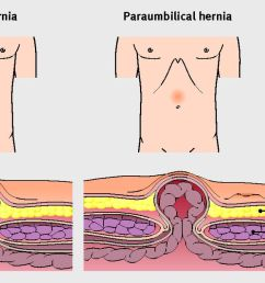 features of umbilical and paraumbilical hernias [ 1280 x 669 Pixel ]
