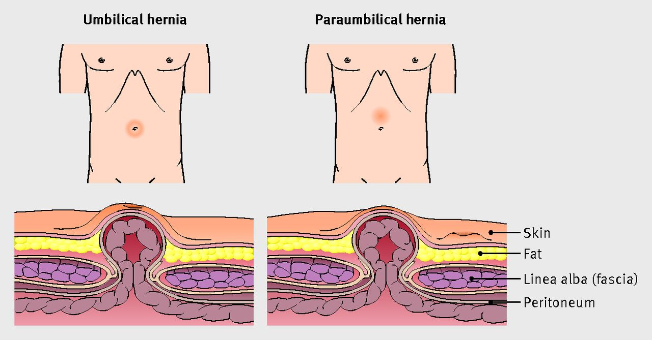 hight resolution of features of umbilical and paraumbilical hernias