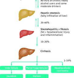 decompensated alcohol related liver disease acute management the bmj alcoholic liver disease diagram [ 982 x 1280 Pixel ]