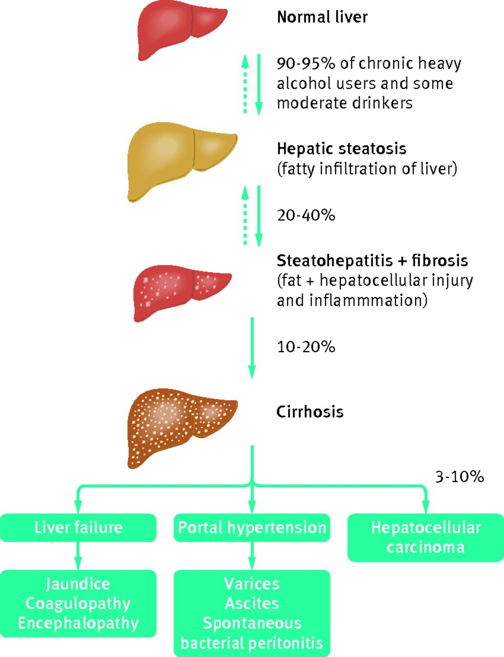 hight resolution of decompensated alcohol related liver disease acute management the bmj alcoholic liver disease diagram