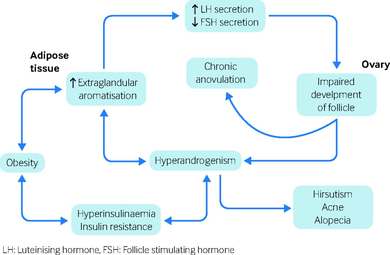 hormonal acne diagram 85 f150 wiring new diagnosis of polycystic ovary syndrome the bmj