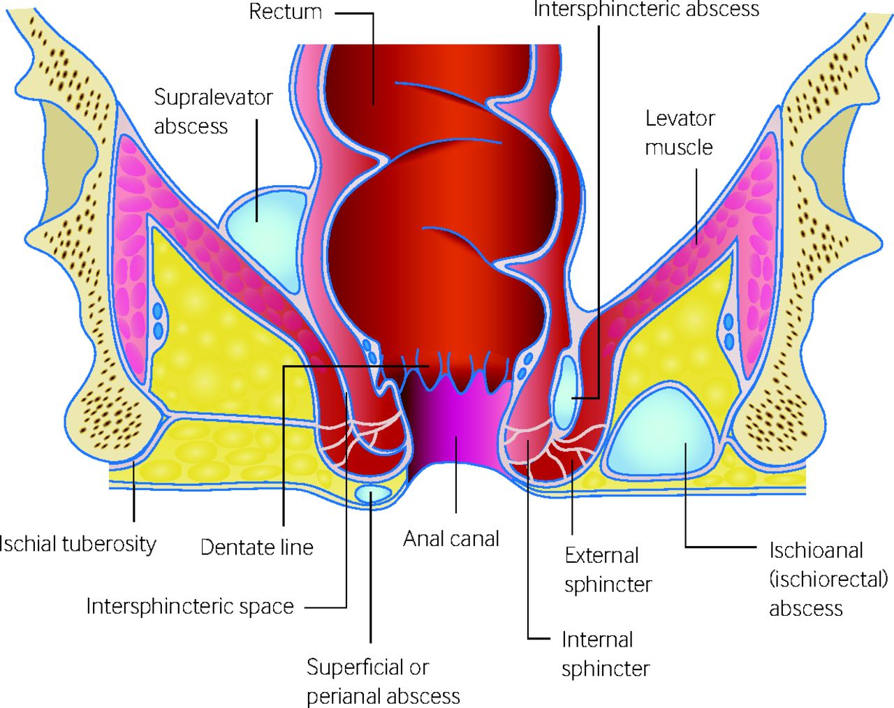 small resolution of fig 1 possible sites of anorectal perianal abscesses