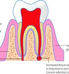 fig 1 local factors that can lead to postoperative haemorrhage after tooth extraction [ 1280 x 829 Pixel ]