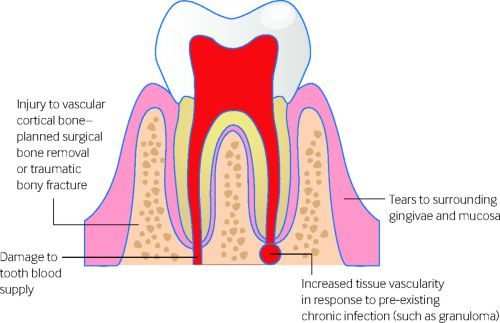 small resolution of fig 1 local factors that can lead to postoperative haemorrhage after tooth extraction