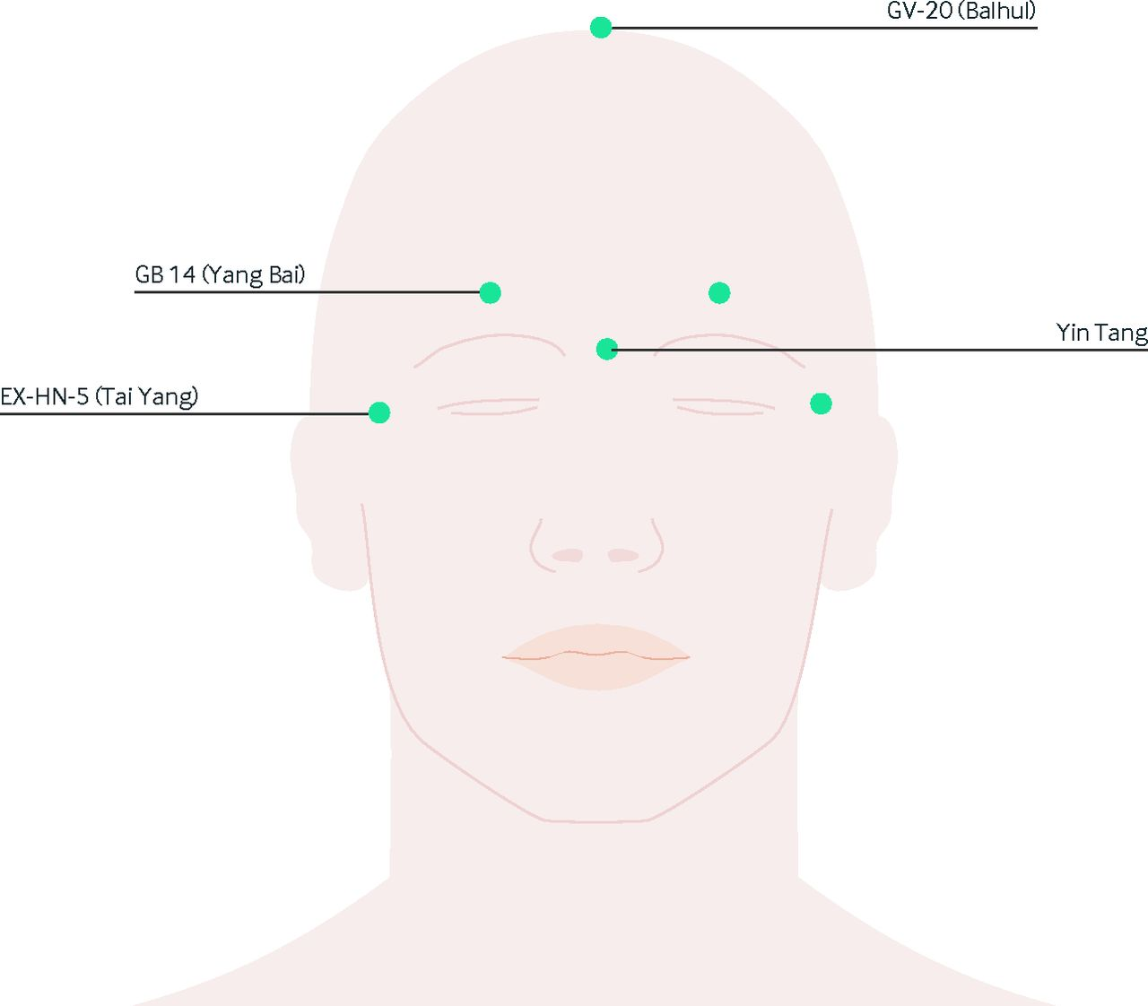 fig 1 common acupuncture points on the face and head where needles are inserted in combinations to treat various types of headaches [ 1280 x 1122 Pixel ]
