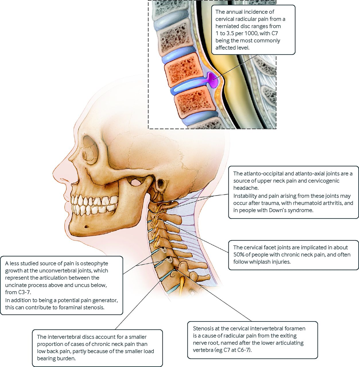 medium resolution of fig 6 sagittal view of cervical spine showing potential pain generators courtesy of frank corl mayo clinic