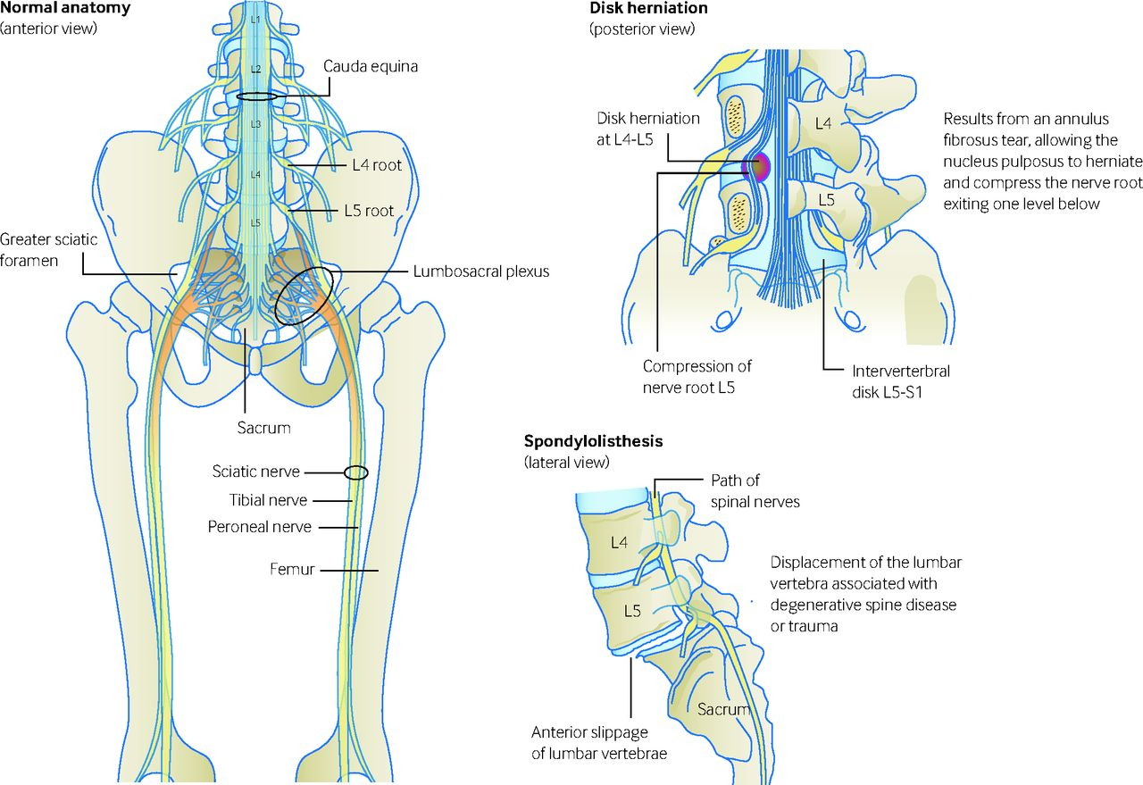 fig 1 common causes of sciatica disc herniation is the commonest cause spondylolisthesis can cause impingement [ 1280 x 879 Pixel ]