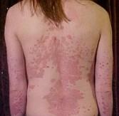psoriasis et peau